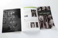 折页设计印刷排版-康达医疗